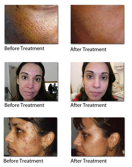 acne regenlite treatment